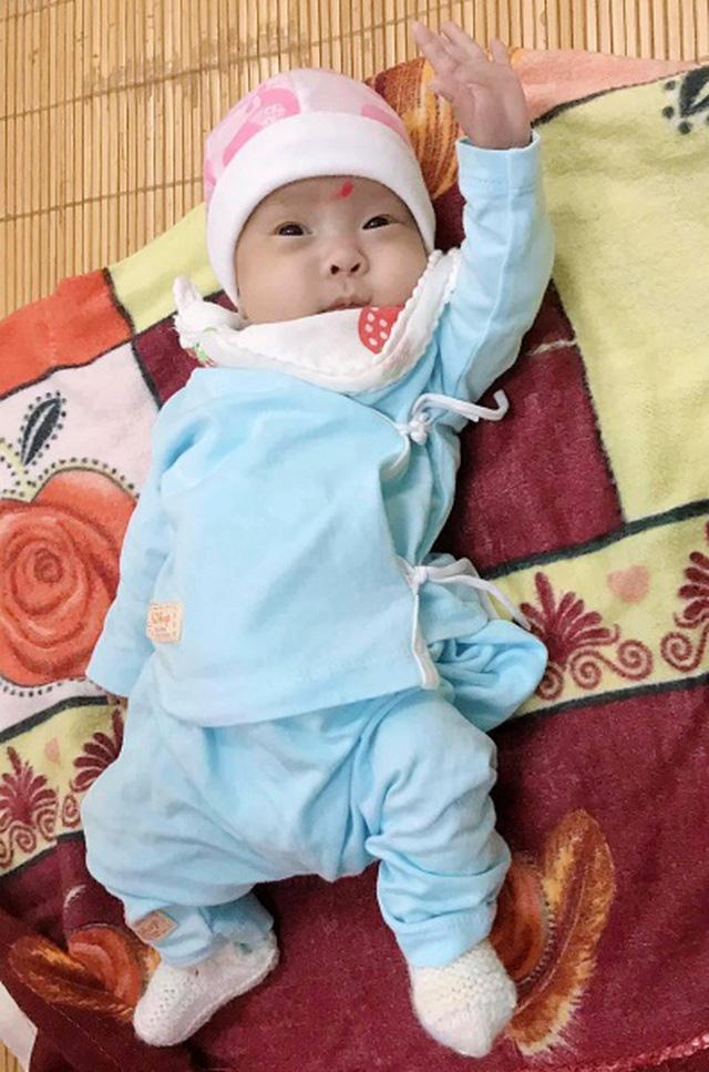 Cứu sống và nuôi dưỡng trẻ sơ sinh nặng chỉ 480g - Ảnh 1.
