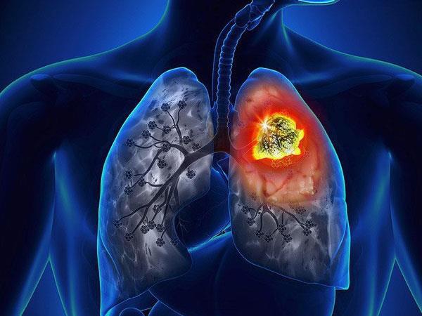 Đông trùng hạ thảo tốt cho người mắc bệnh phổi nhưng nên sử dụng sao cho đúng? - Ảnh 1.
