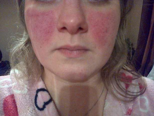 10 triệu chứng của bệnh lupus ban đỏ  - Ảnh 4.