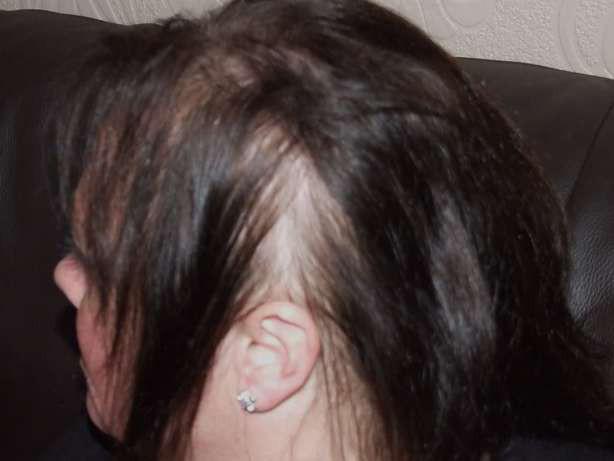 10 triệu chứng của bệnh lupus ban đỏ  - Ảnh 6.