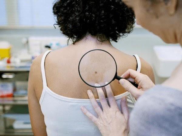 """Tất cả những điều bạn cần biết về """"tăng sắc tố da"""" - Ảnh 2."""