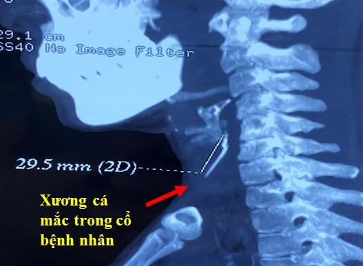 Vừa ăn vừa trả lời điện thoại, mảnh xương cá găm vào cổ họng suốt 3 tháng - Ảnh 1.
