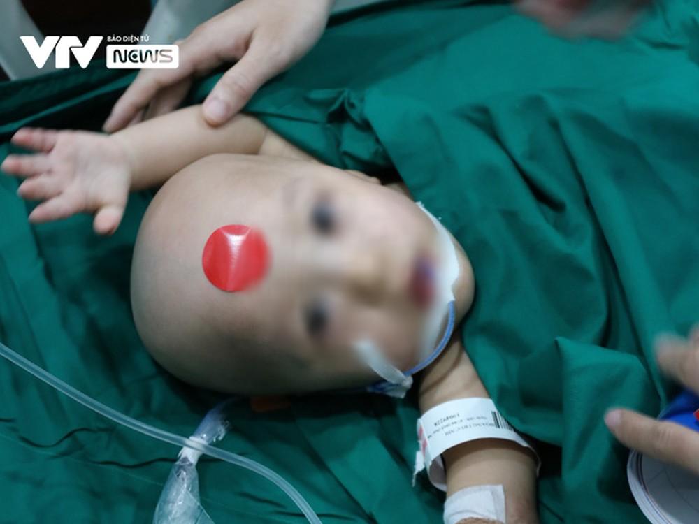 Ba mẹ cặp chị em Song Nhi không kìm được nước mắt trước ca đại phẫu tách dính - Ảnh 4.