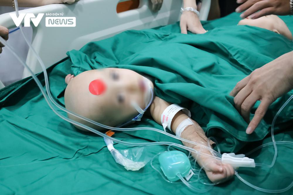 Ba mẹ cặp chị em Song Nhi không kìm được nước mắt trước ca đại phẫu tách dính - Ảnh 3.