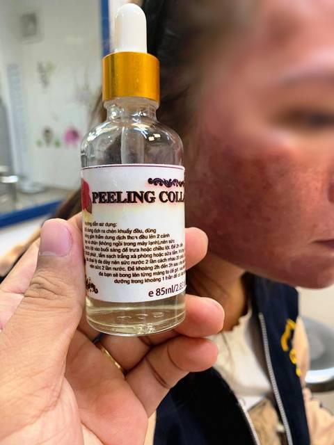 Cầu cứu bác sĩ vì làn da bỏng, phù nề sau khi bôi thuốc trị trứng cá mua trên mạng - Ảnh 1.