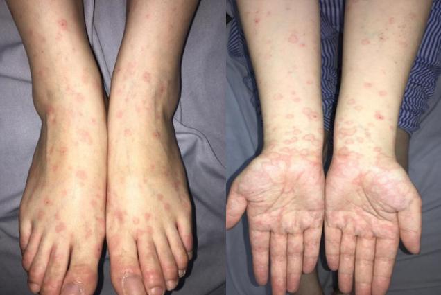 Nổi ban đỏ toàn thân do nhiễm herpes khi xăm môi - Ảnh 1.