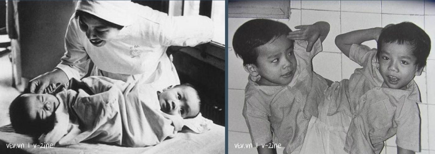 Từ kỳ tích Việt - Đức, Song Nhi đến ước mơ trẻ em ở đâu cũng được chăm sóc tốt nhất - Ảnh 9.