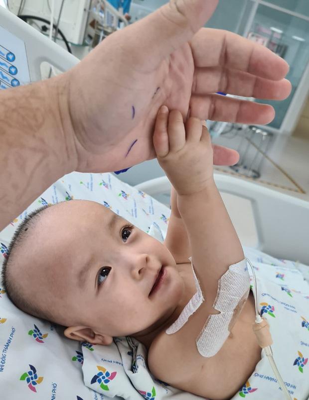 Diệu Nhi rạng rỡ nắm chặt tay bác sĩ, khoảng 6 tuần nữa hai bé sẽ tập đi - Ảnh 1.