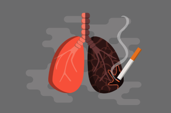 Giải pháp thanh lọc lá phổi bị nhiễm độc do khói thuốc lá - Ảnh 1.