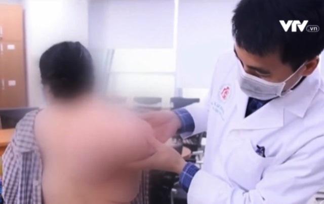Tách bỏ thành công khối u nặng 5kg vùng bả vai - Ảnh 1.