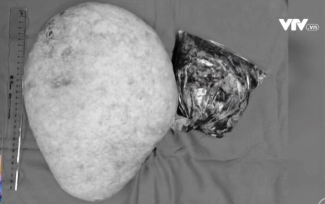Tách bỏ thành công khối u nặng 5kg vùng bả vai - Ảnh 3.