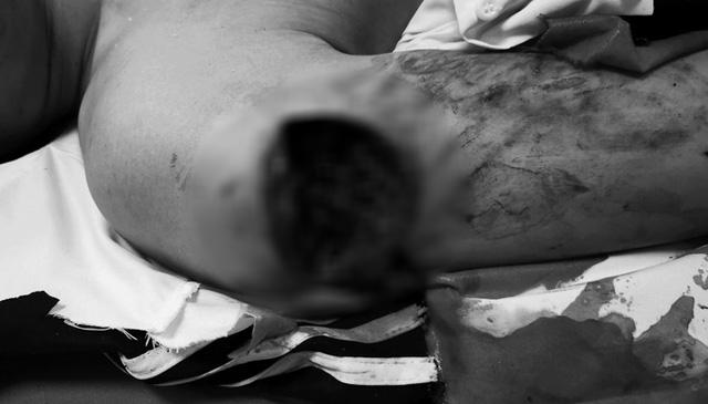 Thanh niên 17 tuổi đa chấn thương do pháo tự chế phát nổ - Ảnh 2.
