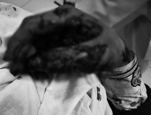 Thanh niên 17 tuổi đa chấn thương do pháo tự chế phát nổ - Ảnh 1.