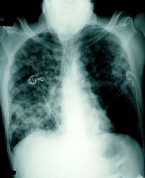 Nam bệnh nhân phát hiện mắc Whitmore sau 2 tháng ho, sốt - Ảnh 1.