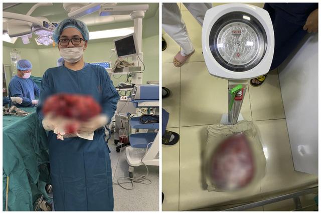 Chướng bụng suốt 3 tháng vì khối u nặng 10kg trong ổ bụng - Ảnh 1.