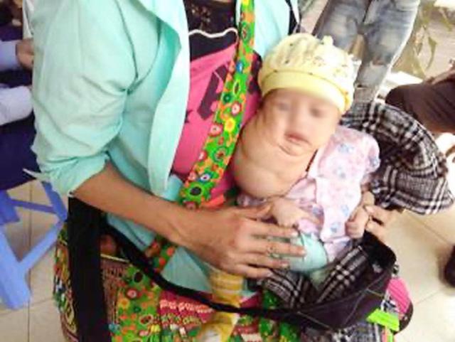 Phẫu thuật khối u bạch huyết khổng lồ cho bé trai mới 1 tháng tuổi - Ảnh 1.