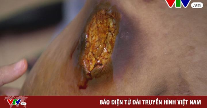 Rước họa vì bài thuốc chữa ung thư vú truyền miệng
