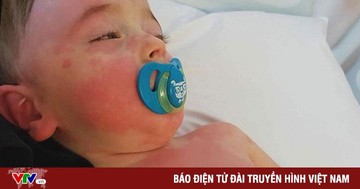 Mỹ bắt đầu nghiên cứu triệu chứng viêm đa hệ thống ở trẻ em liên quan COVID-19