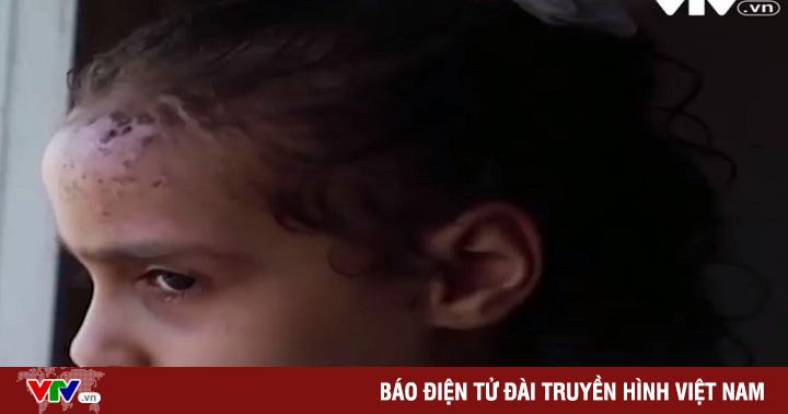Tổn thương tâm lý nghiêm trọng ở trẻ em sau đụng độ Palestine - Israel