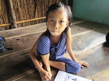 Bé Nguyễn Thị Kiều dù đã 7 tuổi, nhưng dáng người nhỏ bé, xanh xao cân nặng chỉ chưa đầy 13 kg