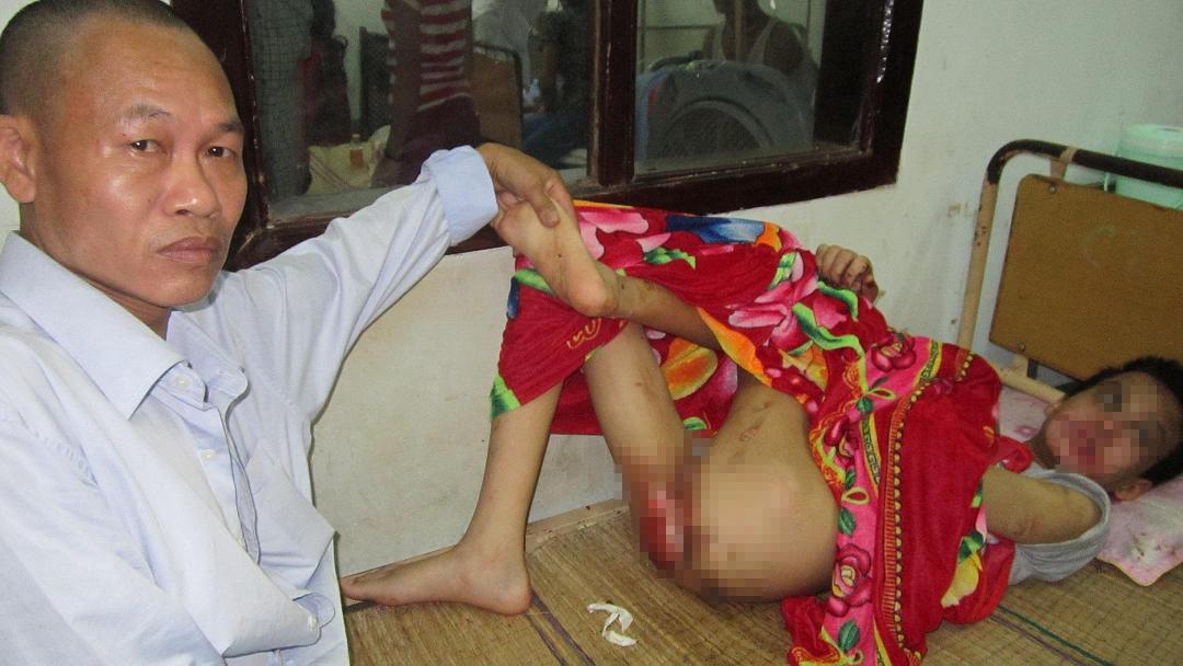 Truy bắt kẻ hành hạ dã man bé trai khuyết tật trong khách sạn