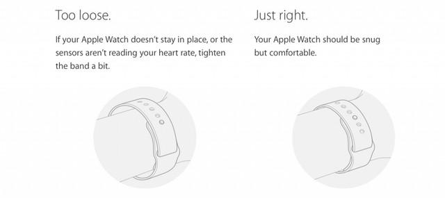 Việc đeo Apple Watch quá rộng hoặc quá chật có thể gây trầy xước da tay