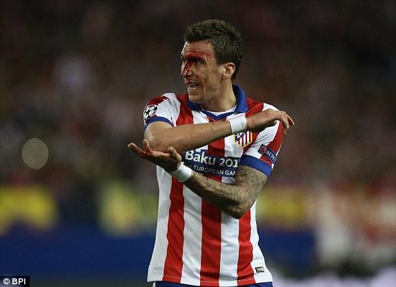 Máu chảy nhiều trên khuôn mặt Mandzukic sau một pha thúc cùi trỏ của Sergio Ramos bên phía Real.