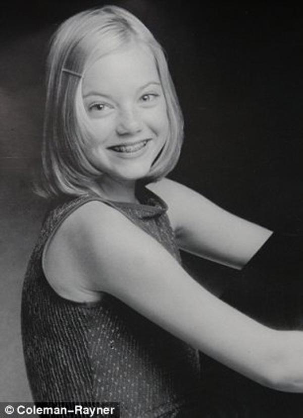 Emma Stone là thiếu nữ niềng răng với mái tóc ngắn.