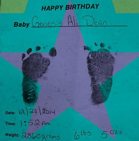 Dấu chân của Genesis khi mới sinh.