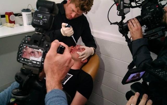 Tình nguyện viên Gabriel Licina được tiêm một lượng Ce6 vào túi kết mạc ở mắt