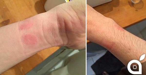 Vùng da tay bị mẩn đỏ sau khi đeo Apple Watch