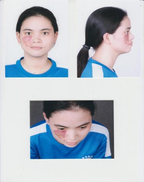 Nhân vật tiếp theo được trao cơ hội lột xác tại Change Life mùa 2 là Nguyễn Thị Hà - cô gái trẻ với vết chàm lớn ở bên phải khuôn mặt. Hà chia sẻ cô từng gặp rất nhiều bất lợi và khó khăn với ngoại hình này và đó cũng chính là lý do cô nộp đơn đăng ký tham gia chương trình.