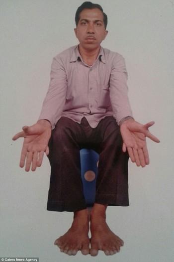 Devendra Suthar sở hữu đến 28 ngón tay, chân