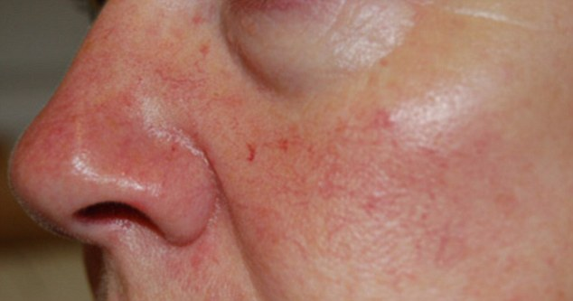 ... và hậu quả là mặt trông đỏ hơn do các mau mạch bị vo