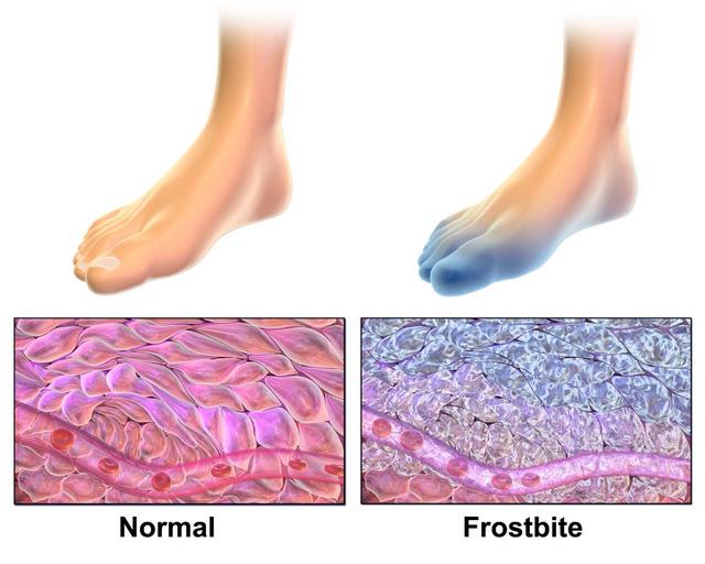 """Tê cóng xảy ra khi các mô bên dưới da """"đóng băng"""" khi tiếp xúc với thời tiết lạnh và nhiều gió."""