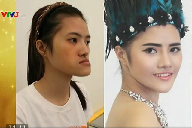 Hình ảnh của Hoàng Thị Hiên trước và sau khi phẫu thuật thẩm mỹ.