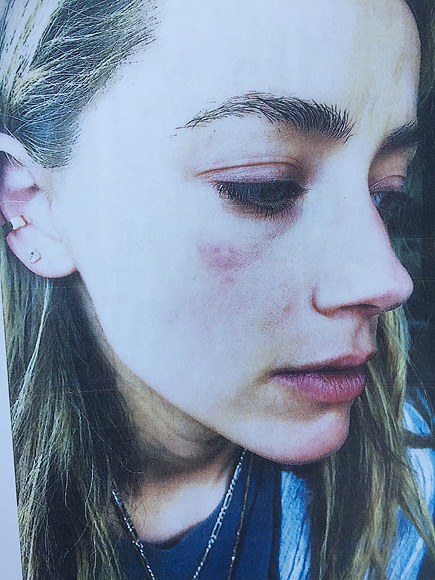 Amber Heard chia sẻ hình ảnh với vết bầm tím trên mặt và tố cô bị Johnny Depp bạo hành