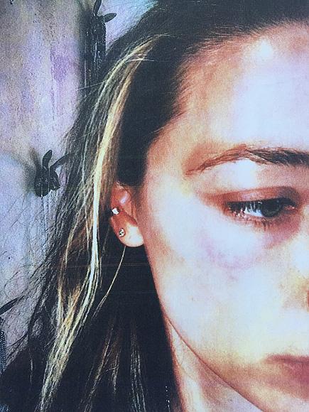 Hình ảnh được cô dùng làm bằng chứng trước tòa về sự bạo hành của Johnny Depp