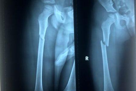 Hình ảnh phim X-quang cho thấy xương đùi phải của cháu bé bị gãy. (Ảnh: Dân trí)