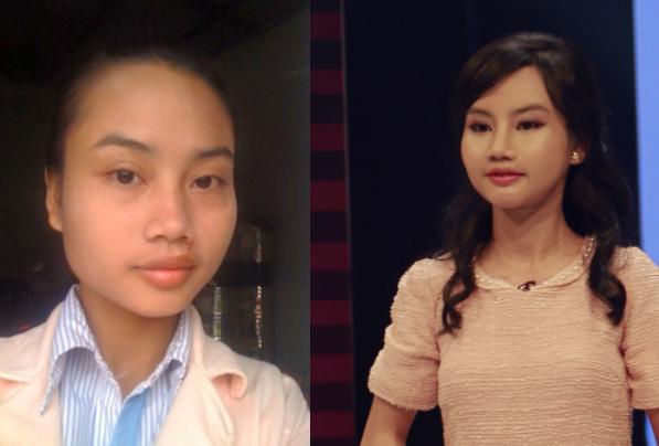Mai Thị Phương trước và sau khi được phẫu thuật trong chương trình.