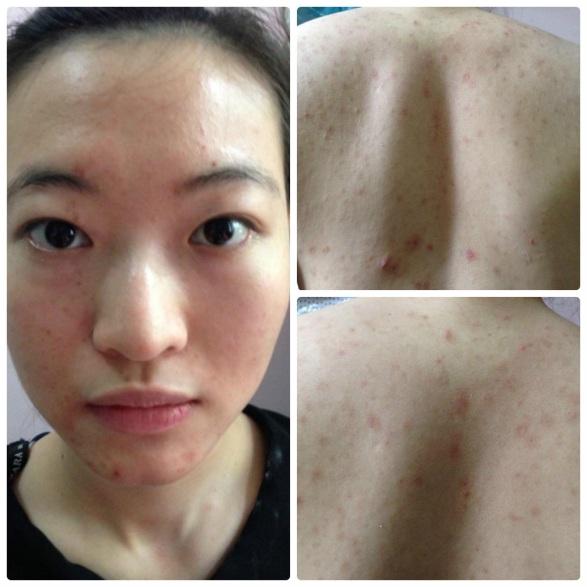 Hình ảnh Thu Trang trước khi phẫu thuật thẩm mĩ