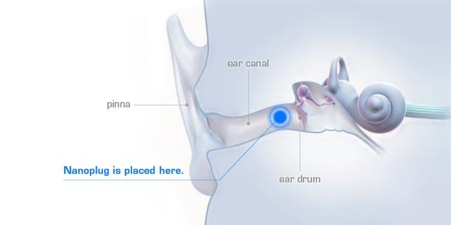 Khi được đeo vào tai, Nanoplug gần như tàng hình