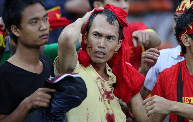 Hình ảnh cổ động viên Việt Nam bị thương ở đầu