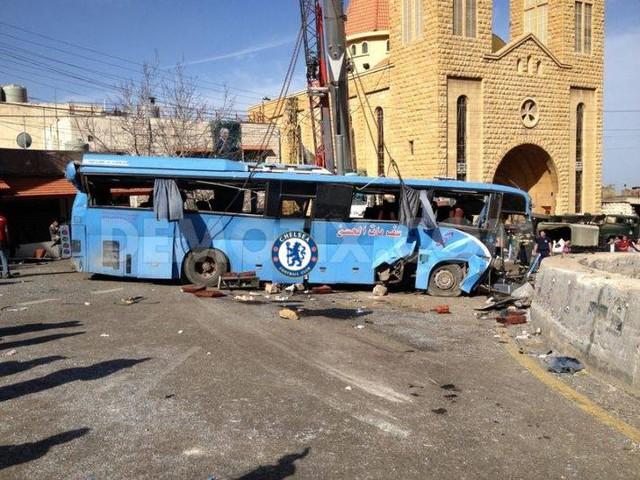 Tuy nhiên, khi vào trận đấu, chiếc xe bus của HLV Mourinho đã bị bắn phá tơi bời bởi các chân sút đội chủ nhà Man City