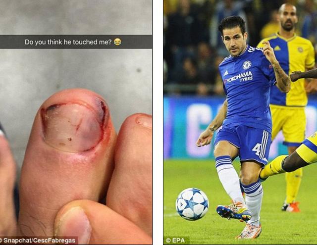 F4 đăng ảnh ngón chân cái bị dập và dòng trạng thái: Liệu anh ta đã chạm vào chân tôi?.