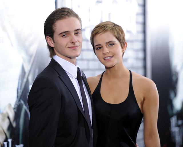 Không chỉ được đánh giá là 2 diễn viên trẻ có tài, Emma và Alex Watson còn là 2 người mẫu. Cả 2 đã từng góp mặt trong một chiến dịch quảng bá của hãng thời trang Burberry.
