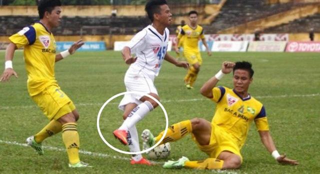 Những pha bóng như vậy không được phép xuất hiện tại V.League 2016