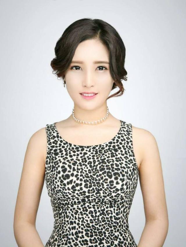Hình ảnh của Lê Hương Giang sau khi hoàn thành phẫu thuật thẩm mỹ tại Hàn Quốc
