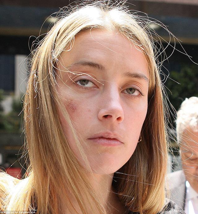 Amber Heard với vết bầm trên mặt - vết bầm tím, theo cáo buộc của cô, là hậu quả từ cú ném điện thoại iPhone của Johnny Depp. (Ảnh: Daily Mail)