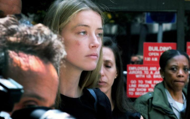Hình ảnh gây sốc của Amber khi cô xuất hiện tại tòa án vào hồi tháng 5. Vết bầm tím trên mặt cô được cho là kết quả của vụ bạo hành từ Johnny Depp. (Ảnh: Telegraph)